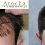 texas-fue-hair-transplant-2000-grafts-2
