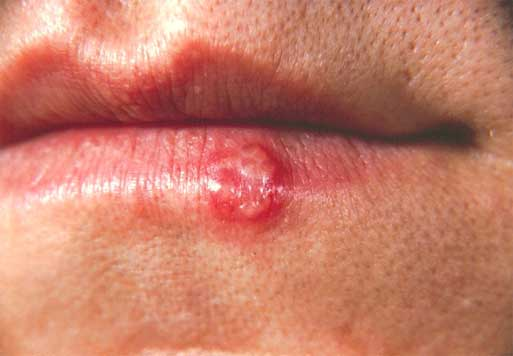 Do I Have Herpes (mouth)? 1
