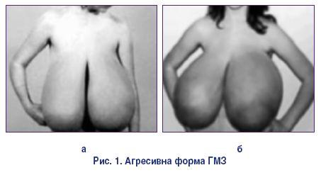 pregnancy induced gigantomastia