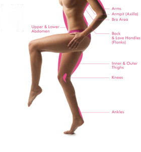 body-areas-for-epilating