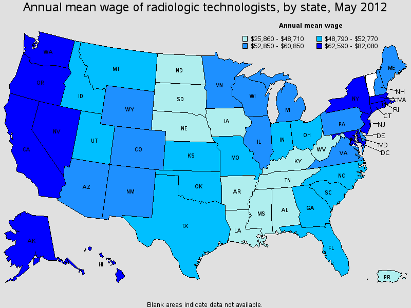 Radiology Technician Salary State By State