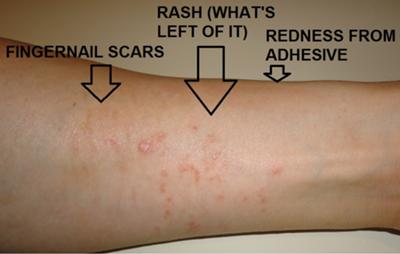Poison Ivy Looking Skin Rash