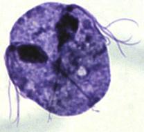 Trichomonas under microscope