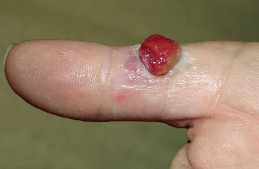 Symptom of Pyogenic Granuloma
