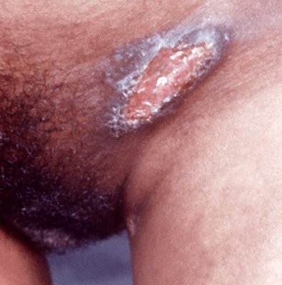 Symptom of Granuloma on vagina