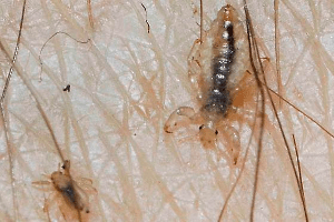 Live Pubic Lice in genital hairs