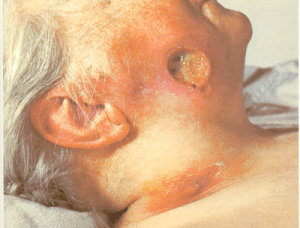 Chronic syphilis infection
