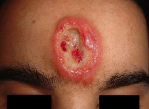Ulcer developed after chronic syphilis infection