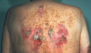 Rash fromsyphilis on back