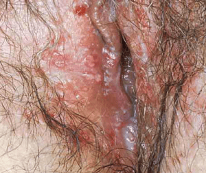 Yeast Infection in female gentials