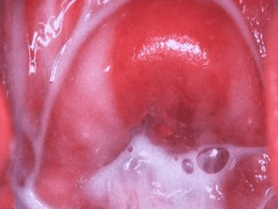 Bacterial Vaginosis deep in vagina