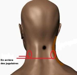 ventouses jugulaires