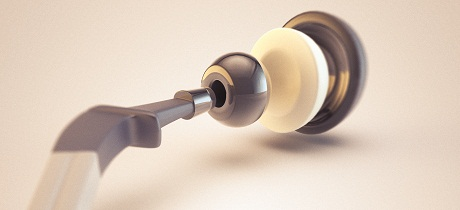 Revision hip replacement ARUK