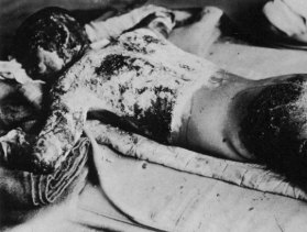 PC03 The After Effects of The Atomic Bombs on Hiroshima & Nagasaki