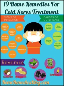 19 Home Remedies For Cold Sores Treatment That Actually Works