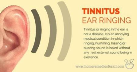 Tinnitus can be constant or intermittent, and many patients experience more than one sound 1
