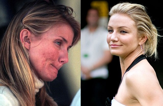 cameron diaz face pimple scars