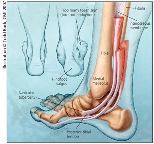 Image result for posterior tibial tendon dysfunction