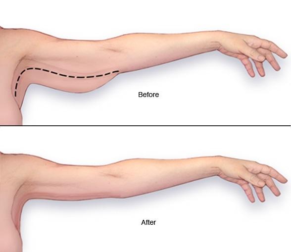 5 דרכים להיפטר משומן בזרועות