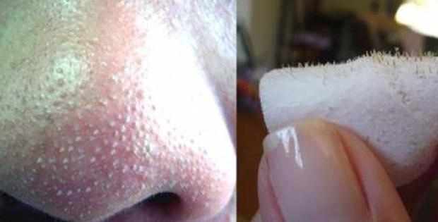 הסוד להיפטר מנקבוביות על האף!