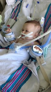 Week 2 of ICU In April. Just starting to get over his pneumonia