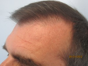 The entire hairline is transplanted. Please notice how natural it looks. All single hair follicles are placed in the frontal hairline followed by two and three hair follicle behind it. No one would notice that the entire hairline is transplanted.