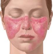 Lupus Penyakit Baru yang Mematikan