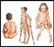 Penyakit Saraf Poliomielitis atau Polio