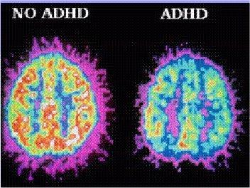 TDAH vision par IRM