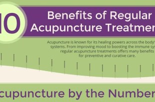10 Acupuncture Benefits