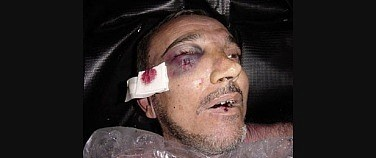 CIA Torture-Murder Victim Manadel al-Jamadi