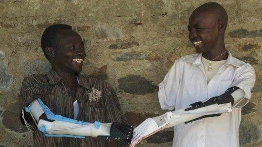 3D-printed prostheses give hope to amputees in war-torn Sudan