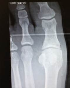 Xray showing closed space at base of big toe joint