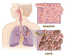 COPD stem cells