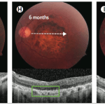 Encouraging New Paper on ACT Stem Cell-Based Trial for Macular Degeneration