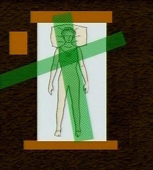 hartmann-uzol na hrudníku