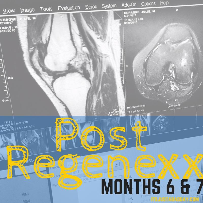 Months 6 & 7 Post Regenexx