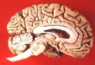 brain donation should be the default option