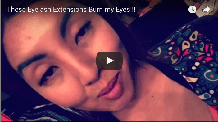 Are Eyelash Extensions Supposed to Burn? Or was it Just Me?