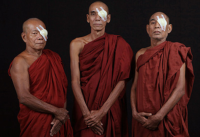 Monks in Myanmar after surgery