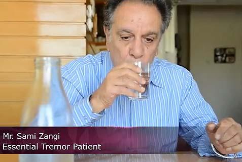 Israeli Noninvasive Surgery Heals Chronic Tremor