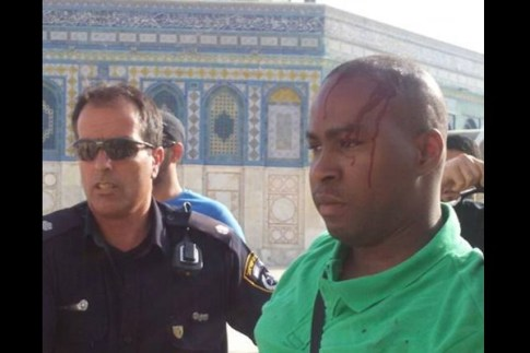 Tourist injured by Muslim mob on Temple Mount on August 4, 2015