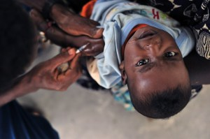 Side effects of Polio vaccination (2)