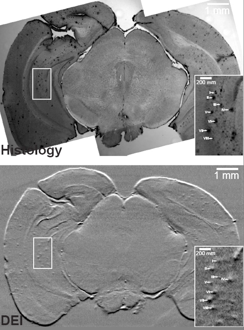 amyloid plaque buildup