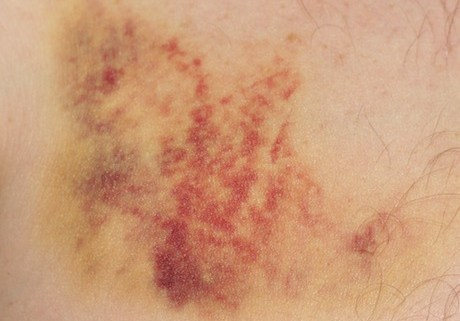 the real bruise!