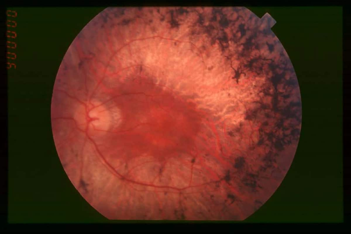 Fundus of patient with retinitis pigmentosa, mid stage (Bone spicule-shaped pigment deposits are present in the mid periphery along with retinal atrophy, while the macula is preserved although with a peripheral ring of depigmentation. Retinal vessels are attenuated.) Hamel Orphanet Journal of Rare Diseases 2006
