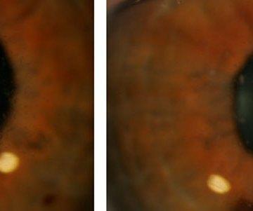 granular-cornealdystrophy-melissa-brimer