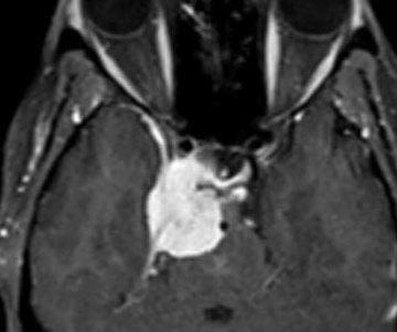 Cavernous-Sinus-Meningioma
