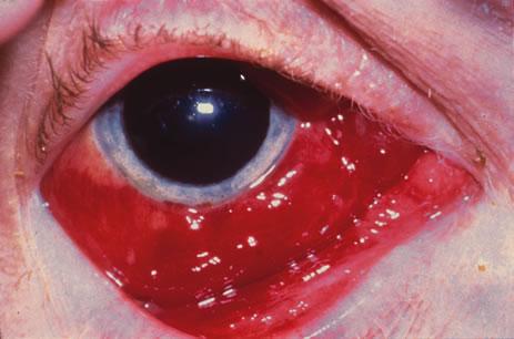 occhio postmortem