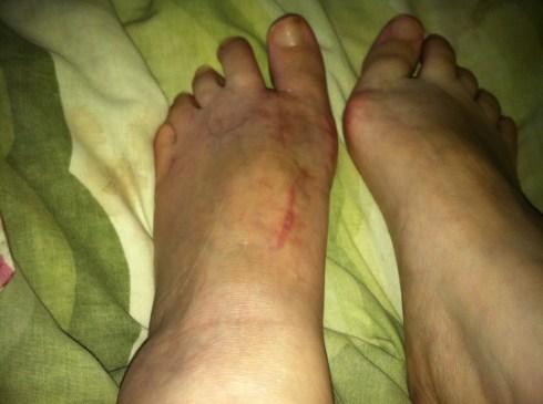 My healing foot!